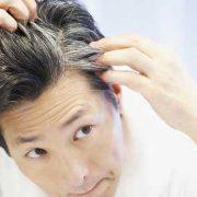 جلوگیری از سفیدی زودرس مو