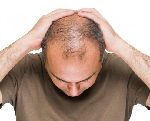ریزش مو - علت ریزش مو - درمان ریزش مو